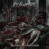 Ecchymosis - Aberrant Amusement In Cadaveric Vomitplay  (Lossless)