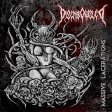 Disemboweled - Massive Lacerations